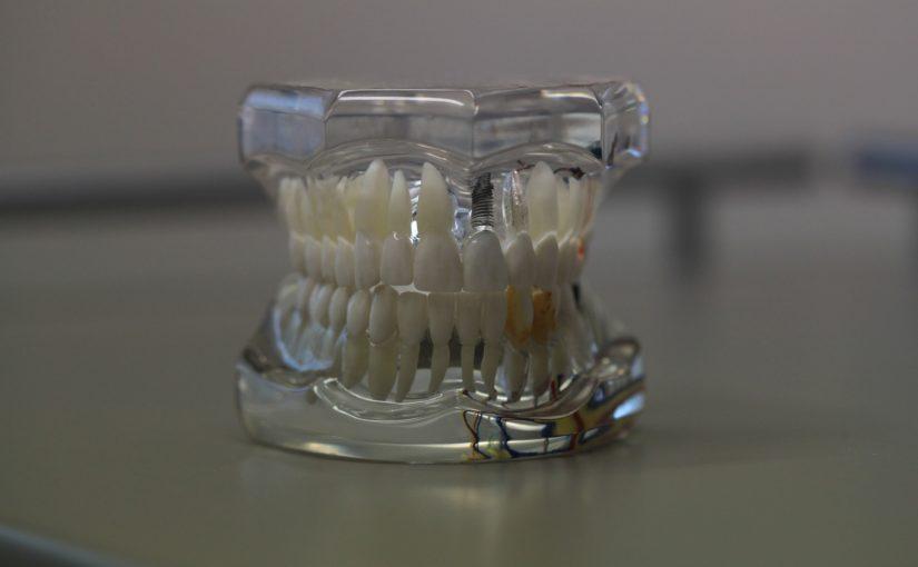 Złe podejście odżywiania się to większe deficyty w zębach natomiast również ich zgubę